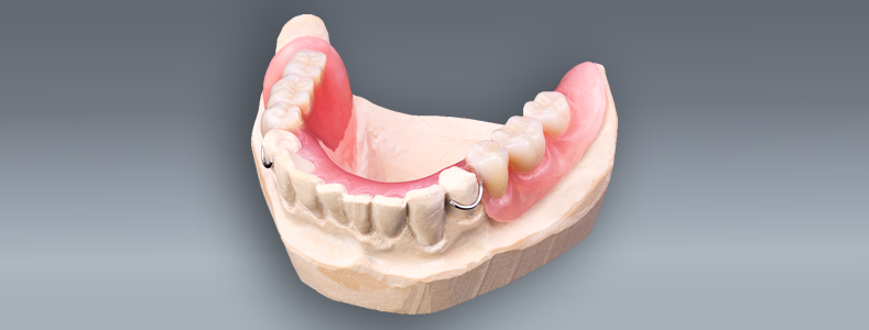 partial dentures for back teeth in Bullhead City